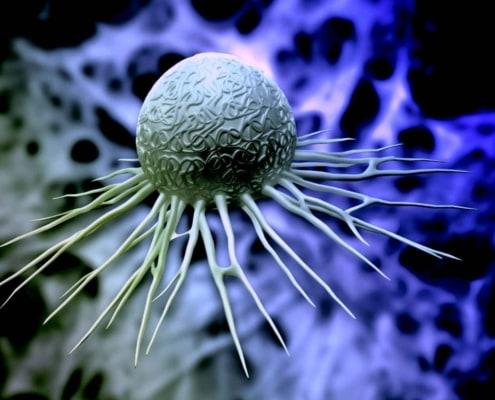 EBV pembrolizumab gastric cancer - MSI-H pembrolizumab gastric cancer - CPS pembrolizumab gastric cancer - MSI, EBV, CPS predict pembrolizumab outcome in gastric cancer