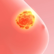Capivasertib added to fulvestrant improves progression-free survival in advanced breast cancer patients