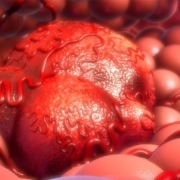 ESMO-releases-the-first-guideline-on-NGS-testing- in-cancers