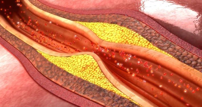 psoriasis-biologics-may-help-reduce-coronary-plaque