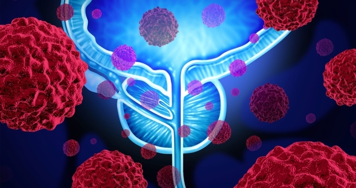 detecting metastases with psma pet in prostate cancer