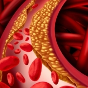 Registry data shows early and large LDL reductions are associated with lowest post-MI cardiovascular event rates